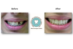 Dental-Implants-custom-Porcelain-Veneer-Restorations