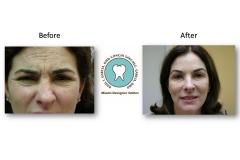 botox-miami-cosmetic-dentist