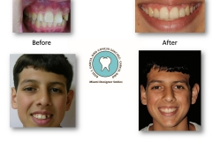 childhood-dental-trauma-treatment