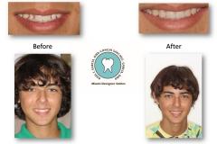cosmetic-dental-veneers-miami-designer-smiles