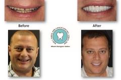 cosmetic-dentist-smile-rehabilitation