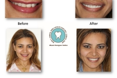 cosmetic-smile-rejuvenation
