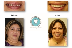 crown-and-bridge-dental-work-miami-designer-smiles