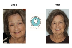 facefilft-dentures-miami-florida
