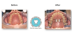 funtional-orthodontics-miami-designer-smiles