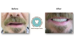 implants-facelift-using-dentures