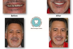 miami-designer-smiles-veneers-pictures
