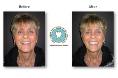 neuromuscular-facelift-dentures-2