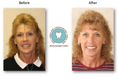 neuromuscular-facelift-dentures