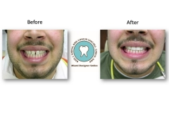 photos-of-veneers