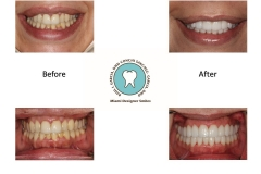 Cosmetic Dentistry Photos Miami FL