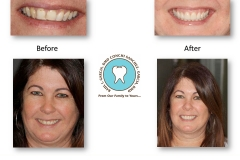 smile-makeover-photos