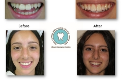 veneers-pictures-miami-designer-smiles