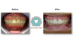 whitening-and-veneers-photos