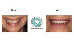 Cosmetic Dentistry Photos Miami FL