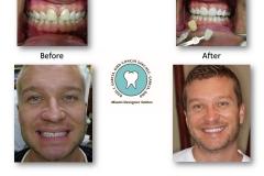 Smile-Makeover-Whitening-10-Porcelain-Restorations