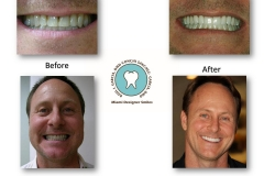 before-and-after-cosmetic-smile-makeover