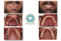 implants-and-veneers-smile-reconstructions