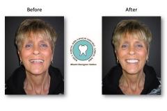 neuromuscular-facelift-dentures-2