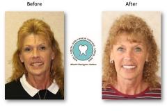 neuromuscular-facelift-dentures