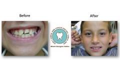 tooth-bonding-photos