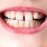 What is Causing That Gap Between Your Child's Front Teeth